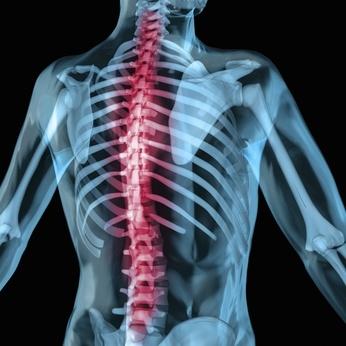 Rundrücken durch verkürzte Bauchmuskulatur
