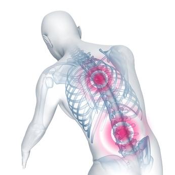 Rückenbeschwerden durch verspannte Muskelen